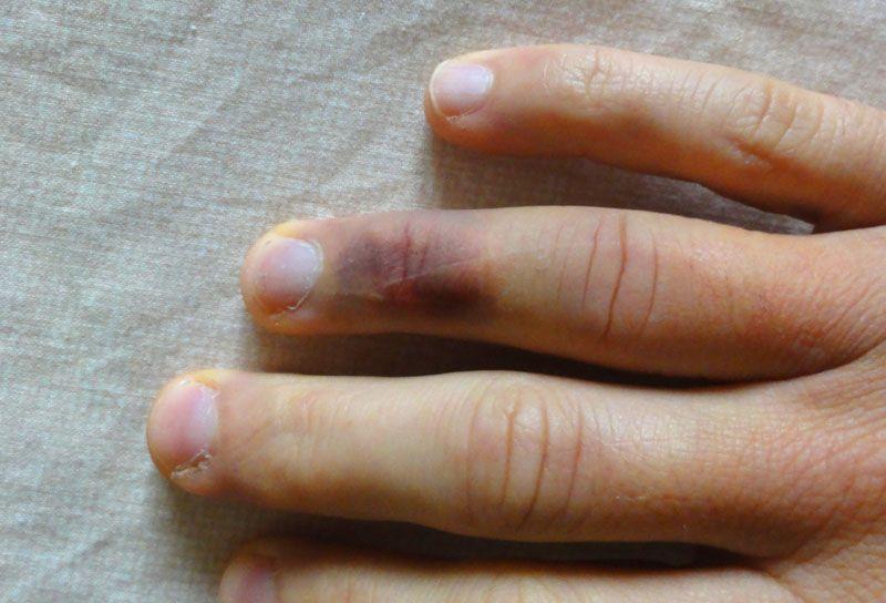 Ne pas essayer de couper une poutrelle béton à mains nues...